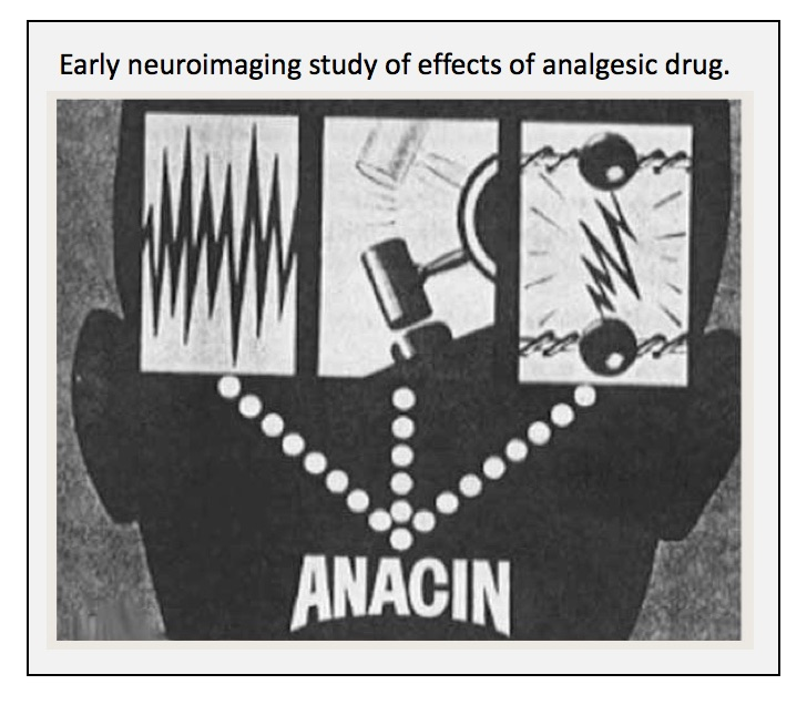 early-neuroimaging-attempt